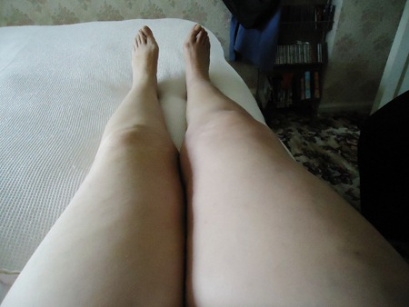 Which leg is the fat one?